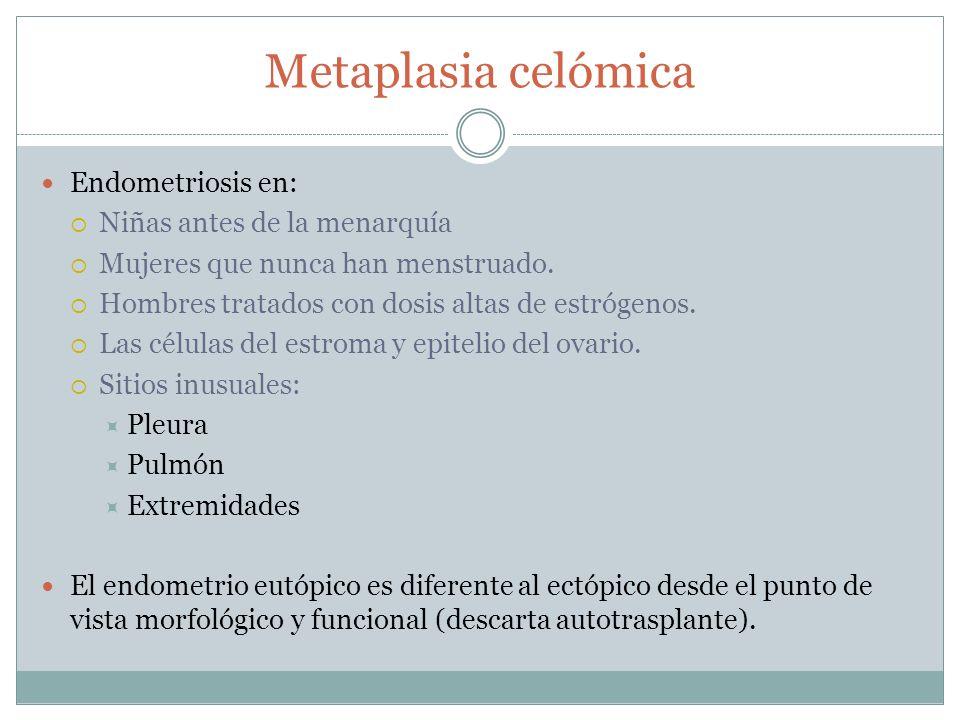 Metaplasia celómica Endometriosis en: Niñas antes de la menarquía