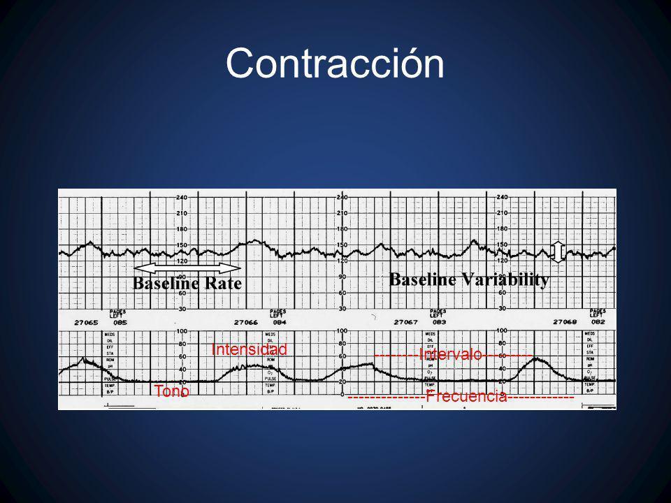 Contracción Intensidad --------Intervalo--------- Tono