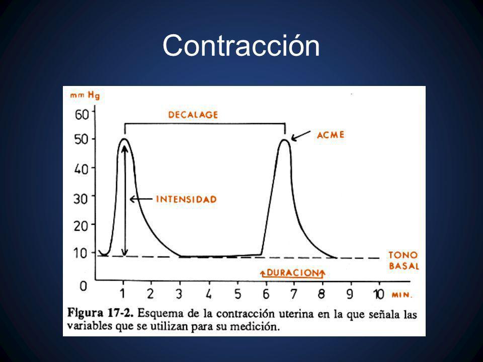 Contracción