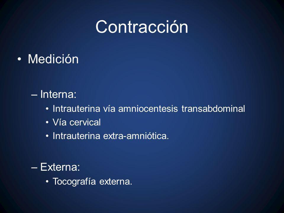 Contracción Medición Interna: Externa: