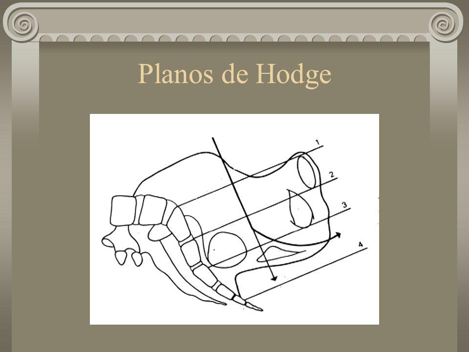 Planos de Hodge
