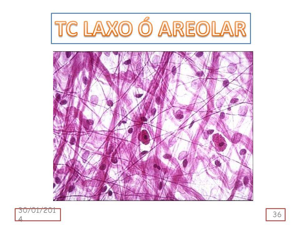 TC LAXO Ó AREOLAR 24/03/2017