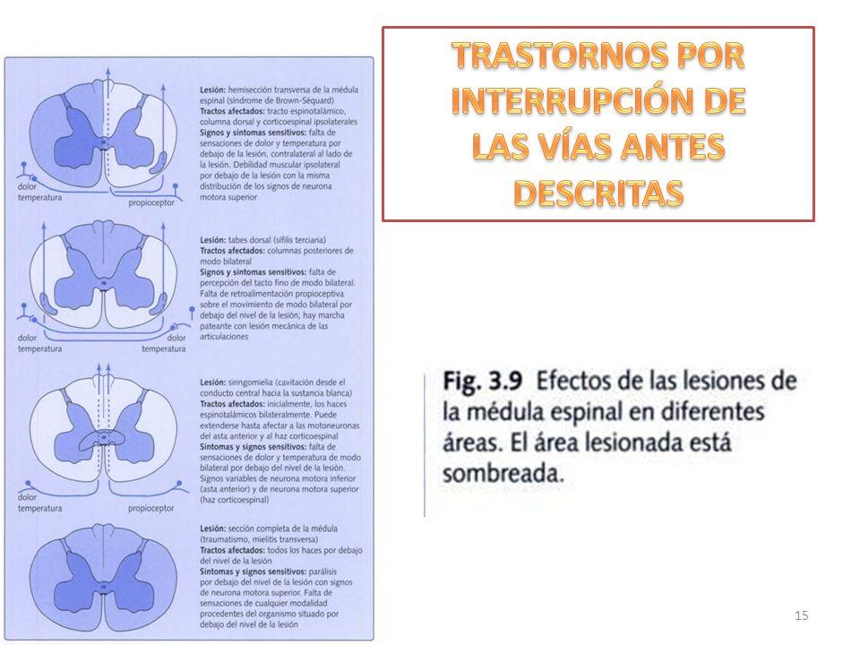 TRASTORNOS POR INTERRUPCIÓN DE LAS VÍAS ANTES DESCRITAS