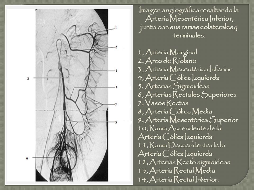 Imagen angiográfica resaltando la Arteria Mesentérica Inferior, junto con sus ramas colaterales y terminales.