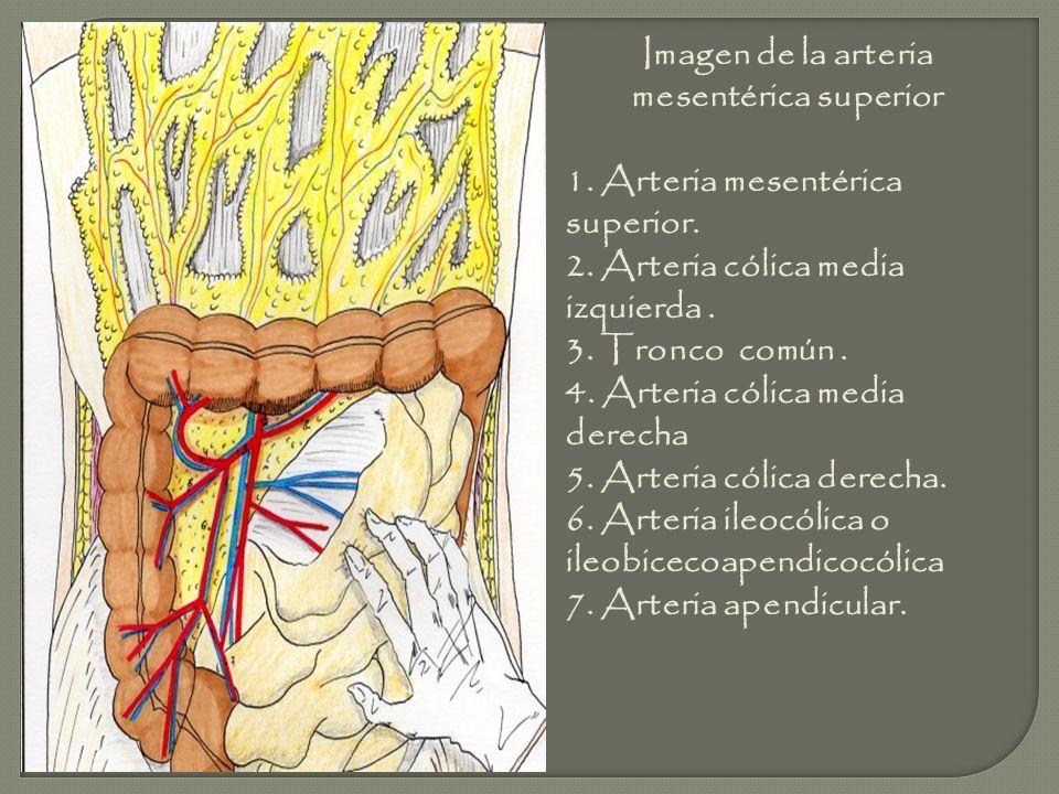 Imagen de la arteria mesentérica superior