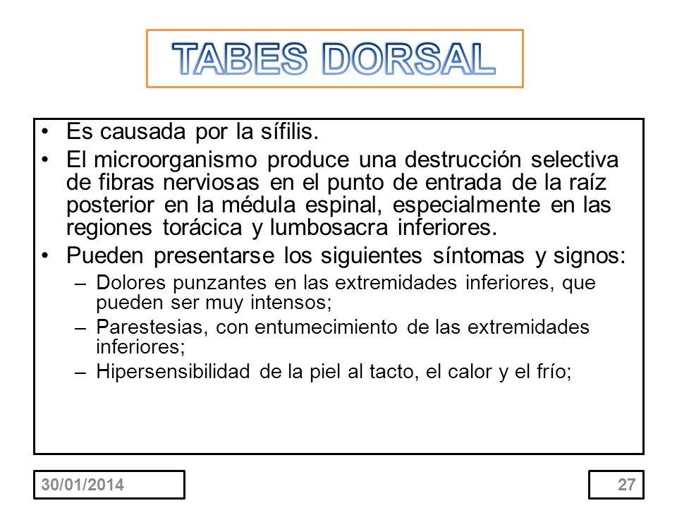 TABES DORSAL Es causada por la sífilis.