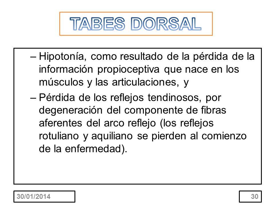 TABES DORSAL Hipotonía, como resultado de la pérdida de la información propioceptiva que nace en los músculos y las articulaciones, y.