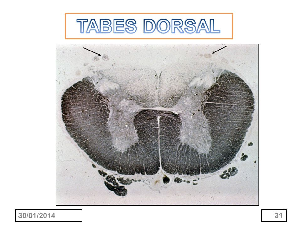 TABES DORSAL 24/03/2017
