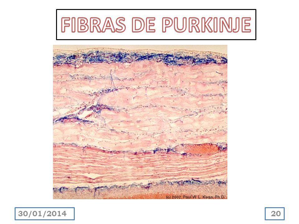 FIBRAS DE PURKINJE 24/03/2017