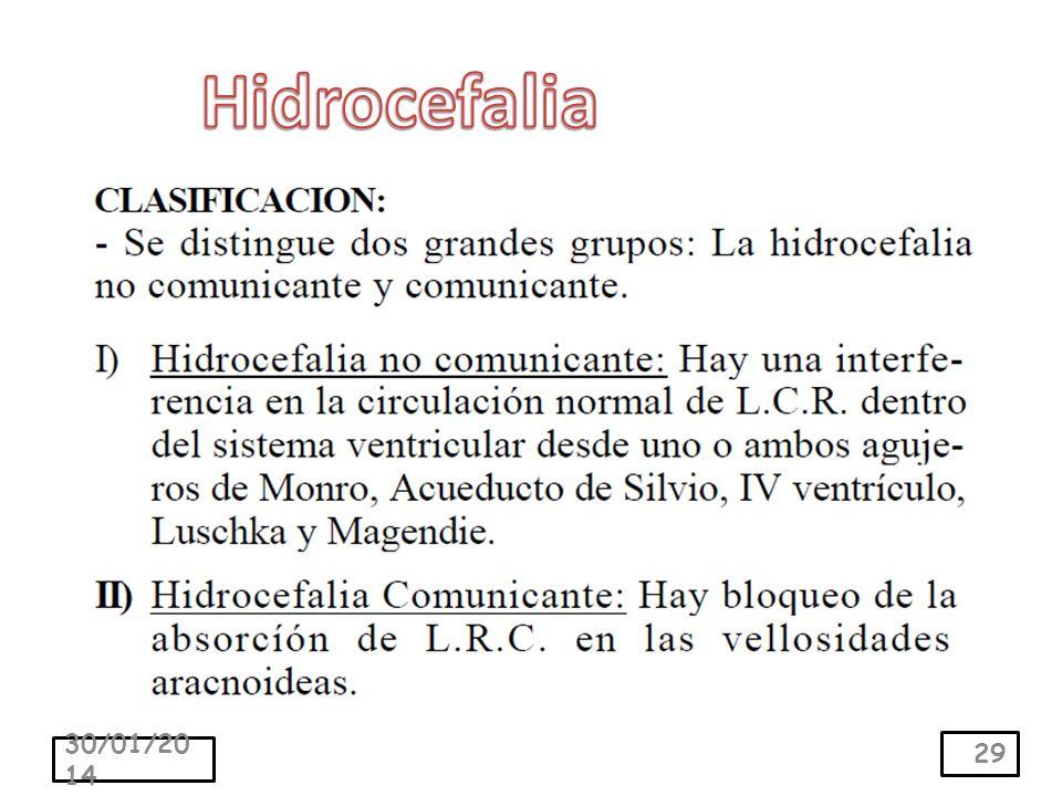 Hidrocefalia 24/03/2017