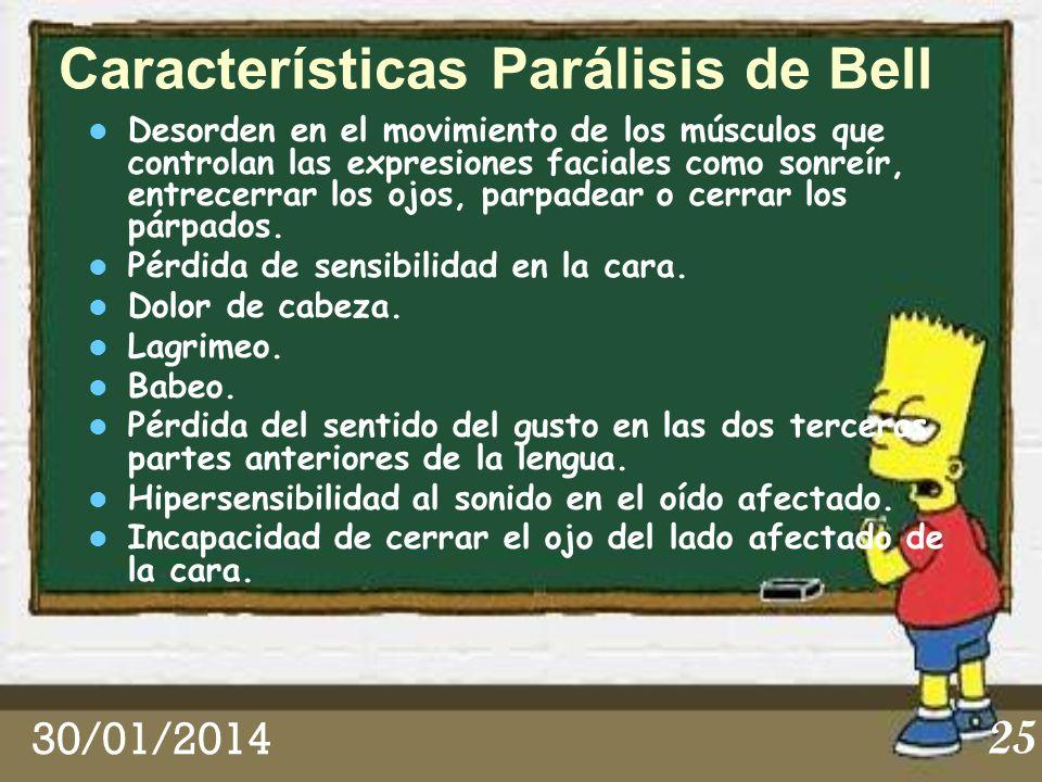Características Parálisis de Bell