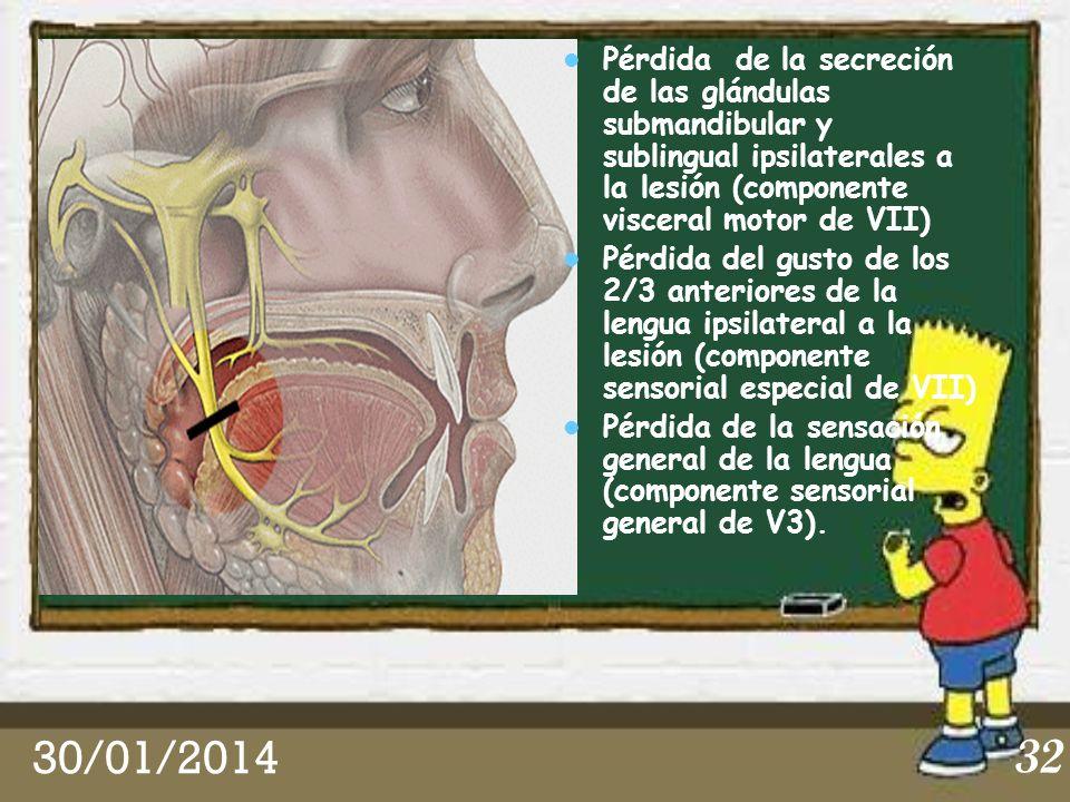 Pérdida de la secreción de las glándulas submandibular y sublingual ipsilaterales a la lesión (componente visceral motor de VII)
