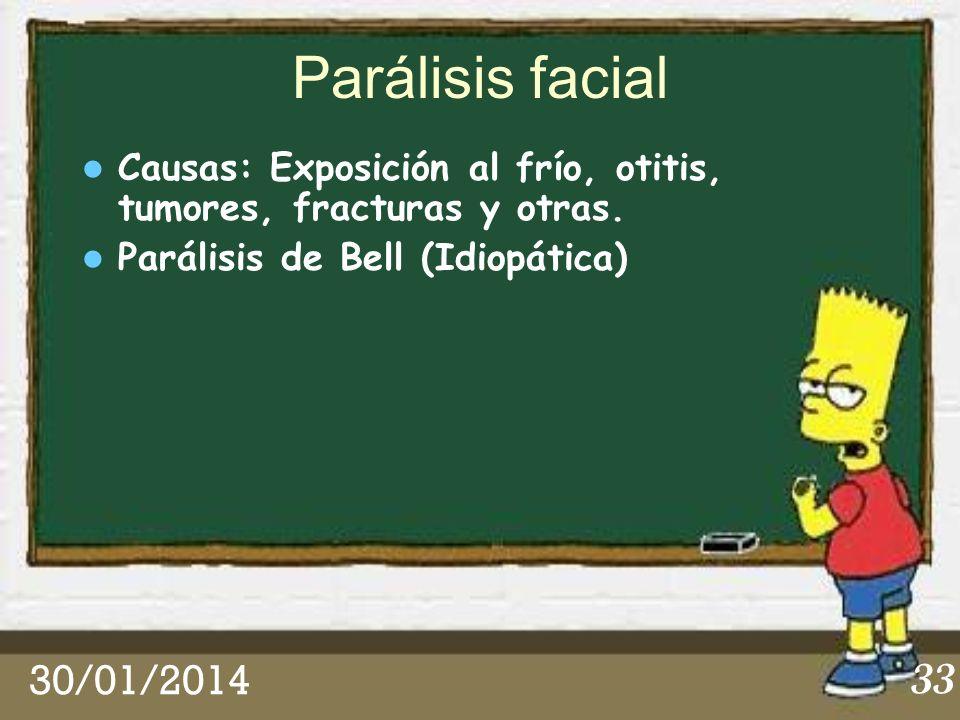 Parálisis facial Causas: Exposición al frío, otitis, tumores, fracturas y otras. Parálisis de Bell (Idiopática)