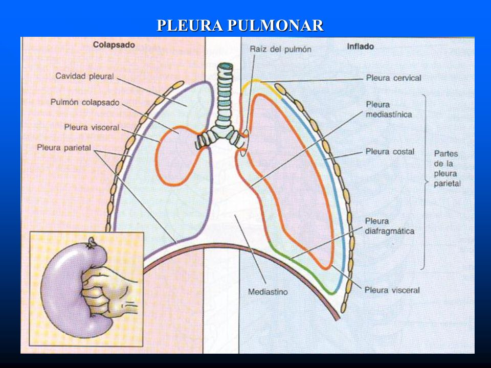 PLEURA PULMONAR