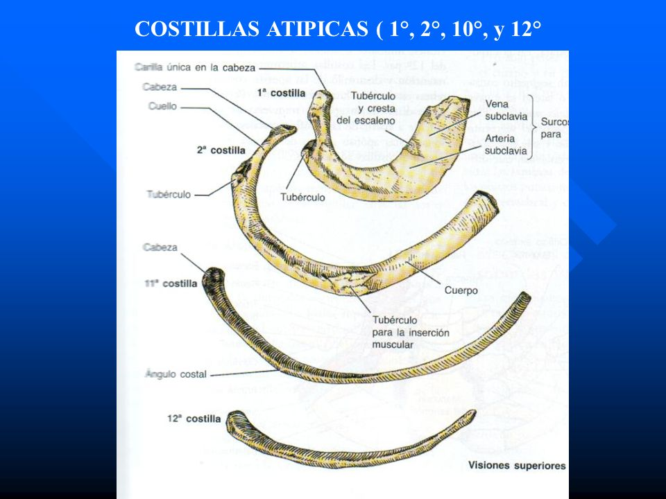 COSTILLAS ATIPICAS ( 1°, 2°, 10°, y 12°