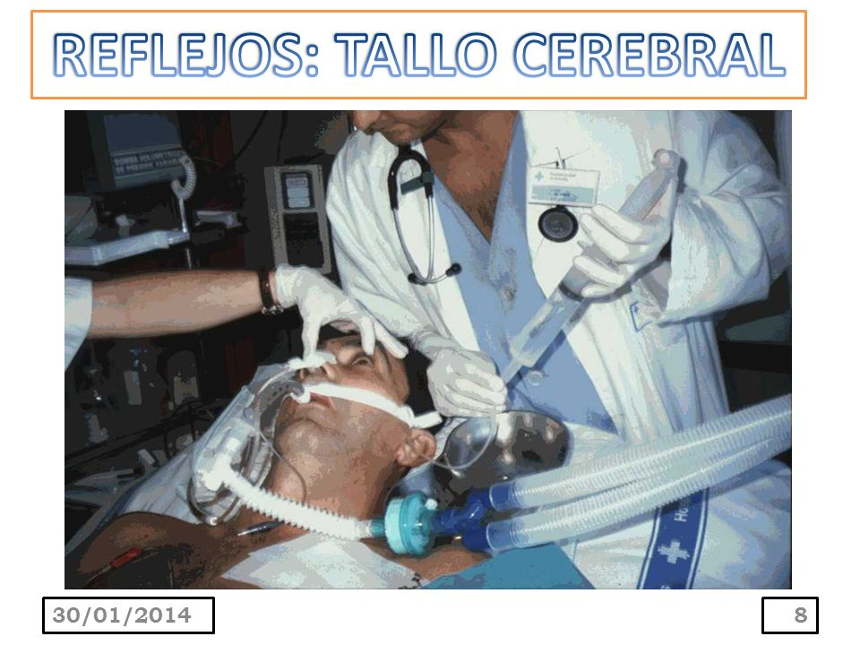 REFLEJOS: TALLO CEREBRAL