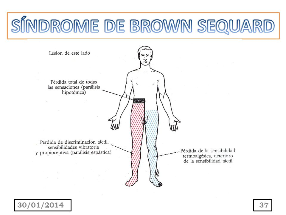 SÍNDROME DE BROWN SEQUARD