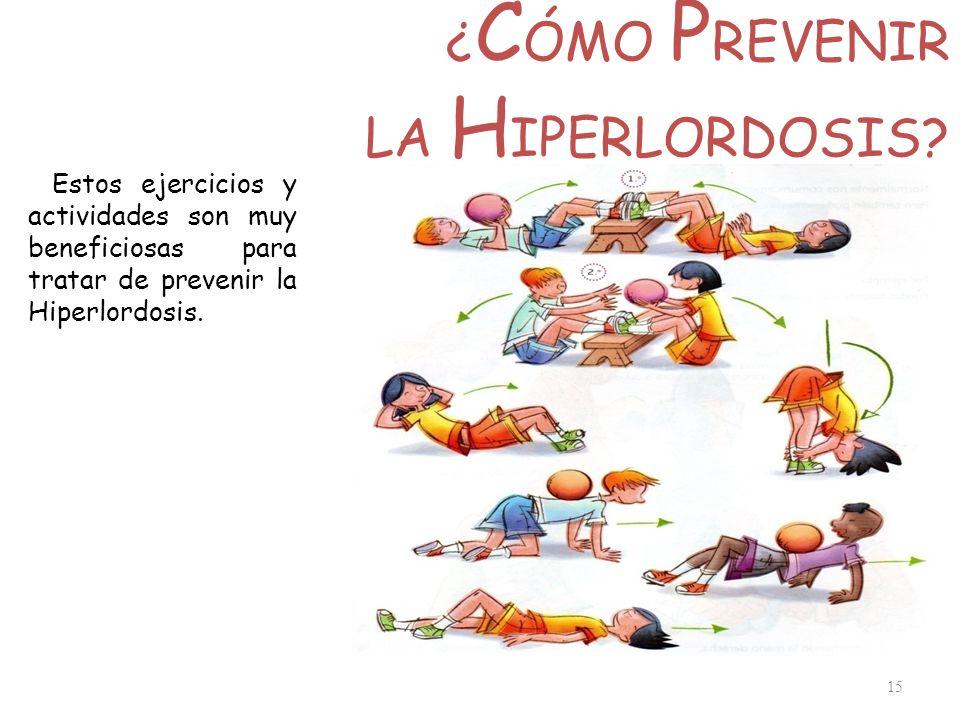 ¿CÓMO PREVENIR LA HIPERLORDOSIS
