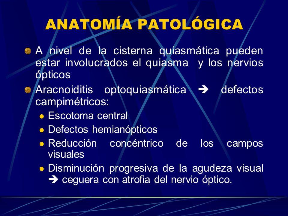 ANATOMÍA PATOLÓGICA A nivel de la cisterna quiasmática pueden estar involucrados el quiasma y los nervios ópticos.