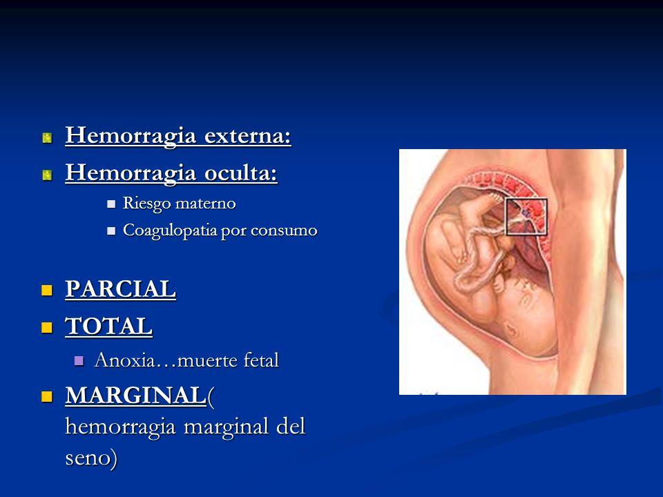 MARGINAL( hemorragia marginal del seno)