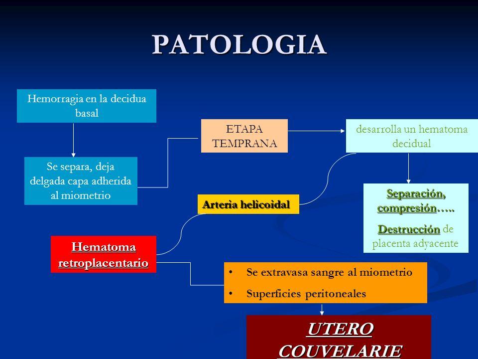 Separación, compresión….. Hematoma retroplacentario