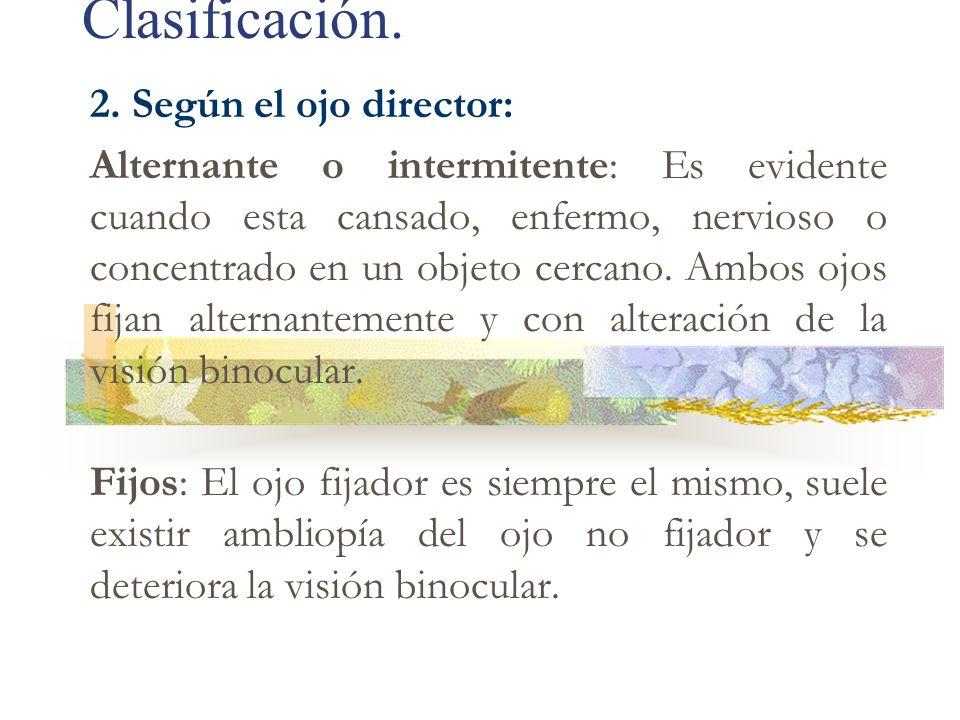 Clasificación. 2. Según el ojo director: