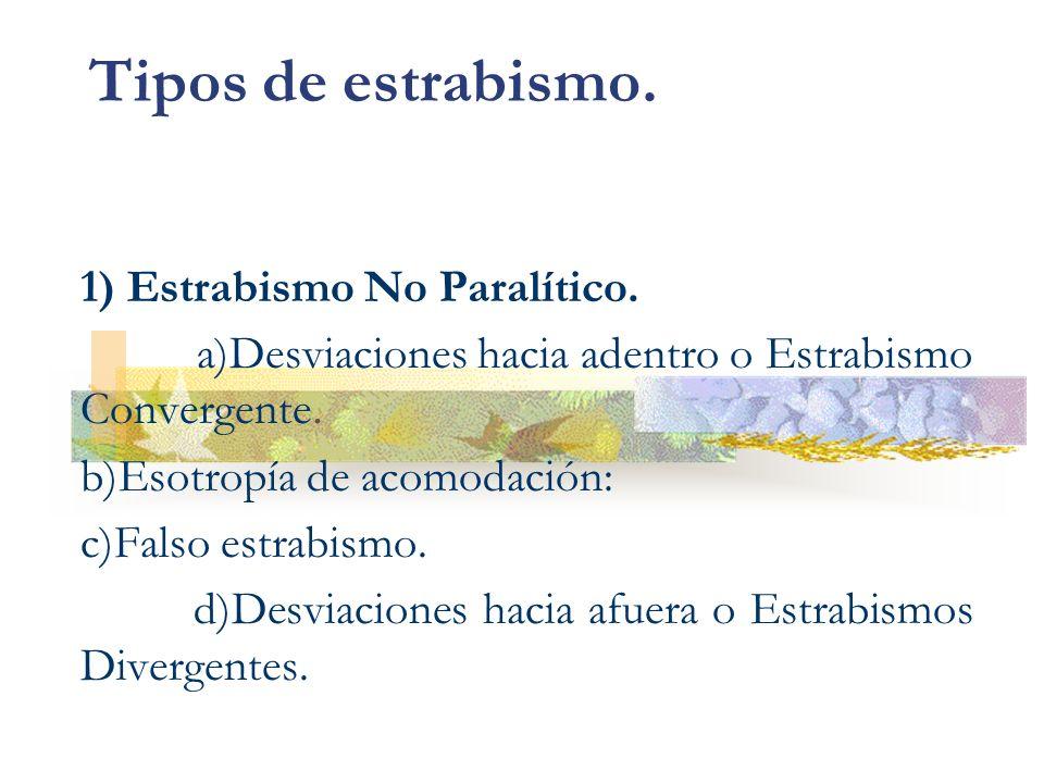 Tipos de estrabismo. 1) Estrabismo No Paralítico.