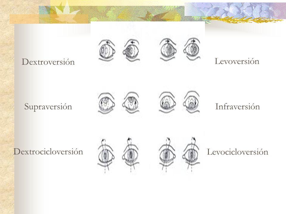 Dextroversión Levoversión Supraversión Infraversión Dextrocicloversión Levocicloversión