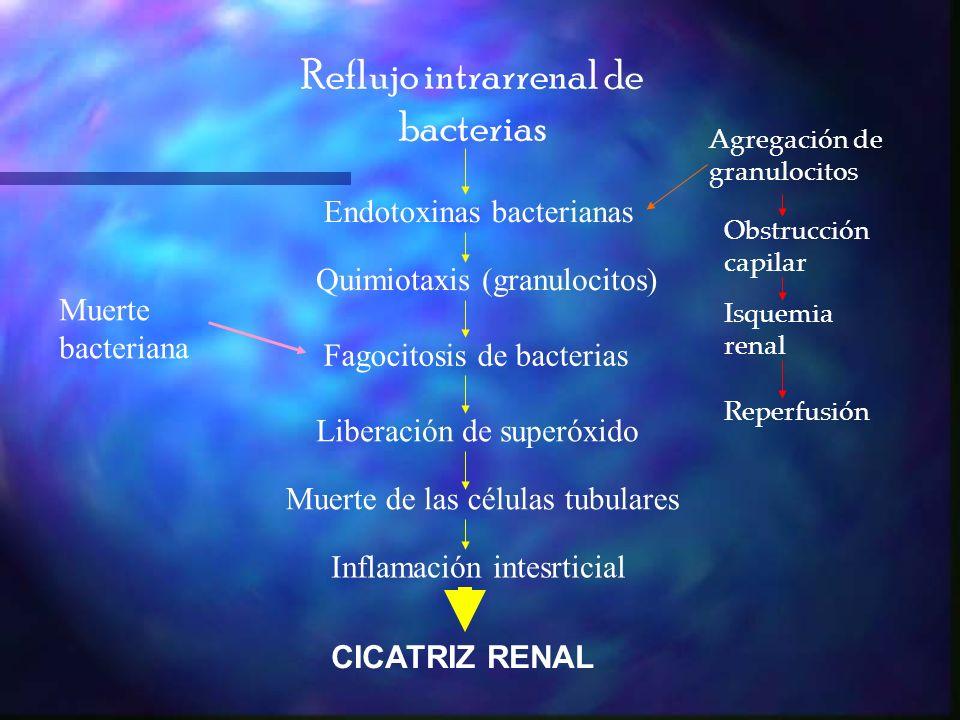 Reflujo intrarrenal de bacterias