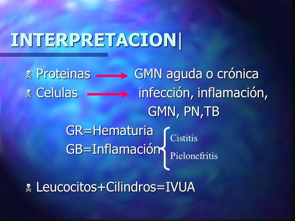 INTERPRETACION| Proteinas GMN aguda o crónica
