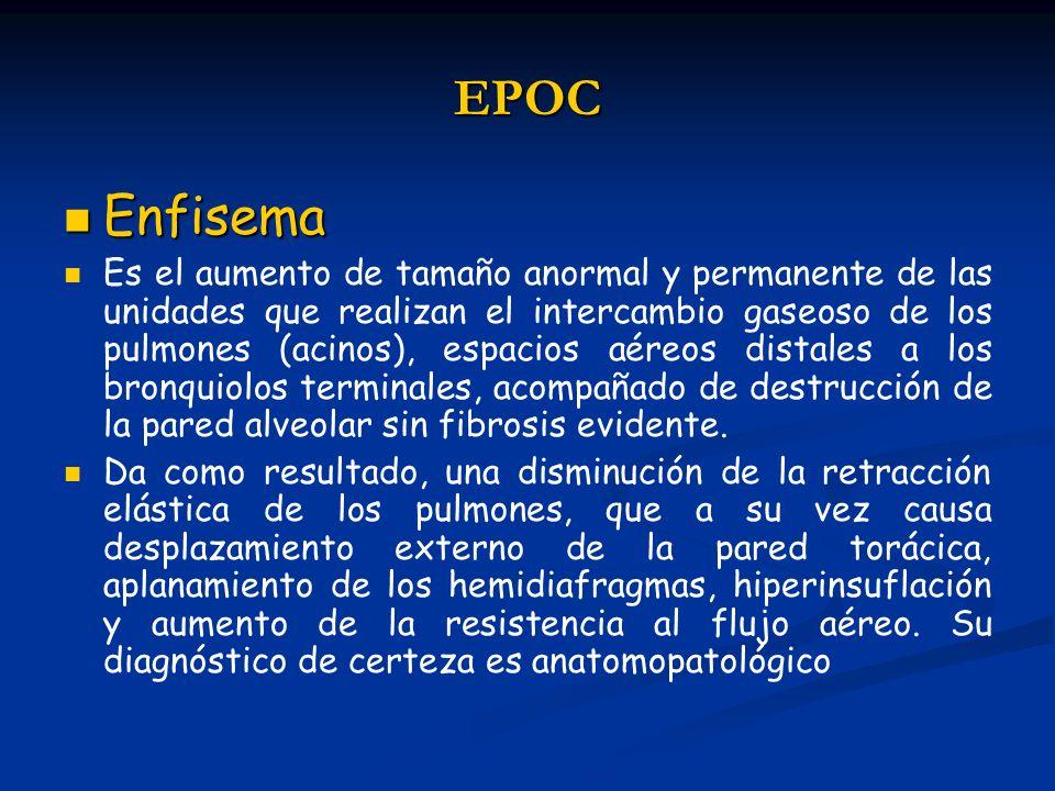 EPOCEnfisema.