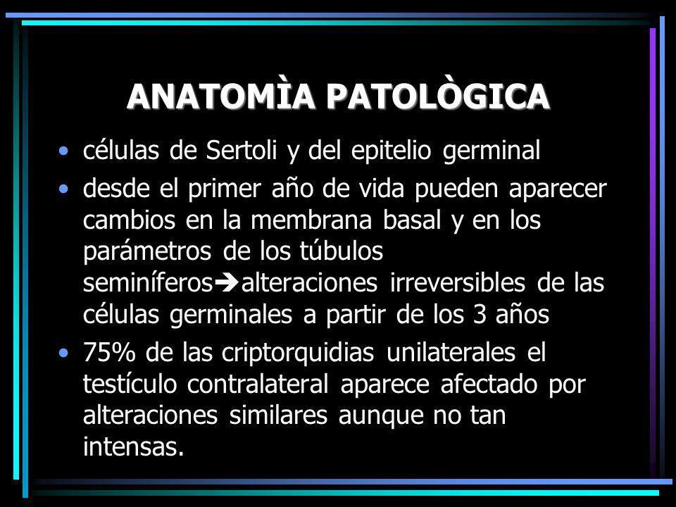 ANATOMÌA PATOLÒGICA células de Sertoli y del epitelio germinal