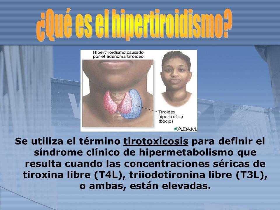 ¿Qué es el hipertiroidismo