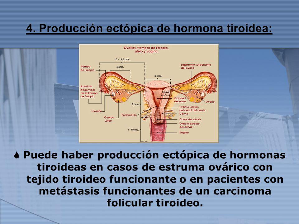 4. Producción ectópica de hormona tiroidea: