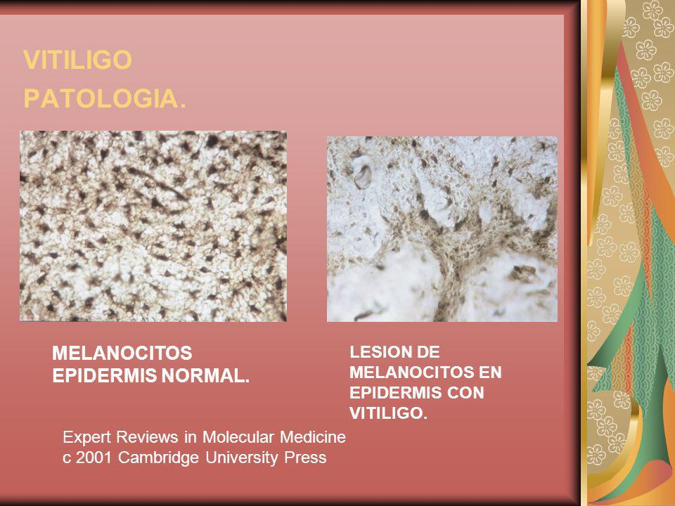 VITILIGO PATOLOGIA. MELANOCITOS EPIDERMIS NORMAL.
