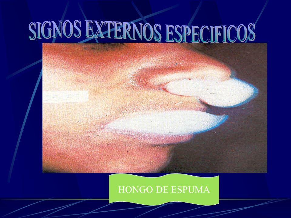 SIGNOS EXTERNOS ESPECIFICOS