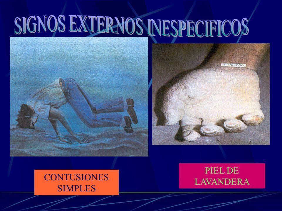 SIGNOS EXTERNOS INESPECIFICOS
