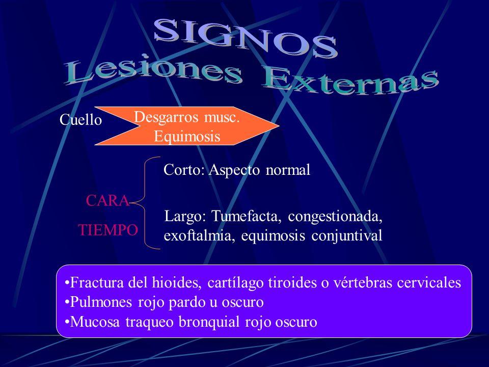 Largo: Tumefacta, congestionada, exoftalmia, equimosis conjuntival