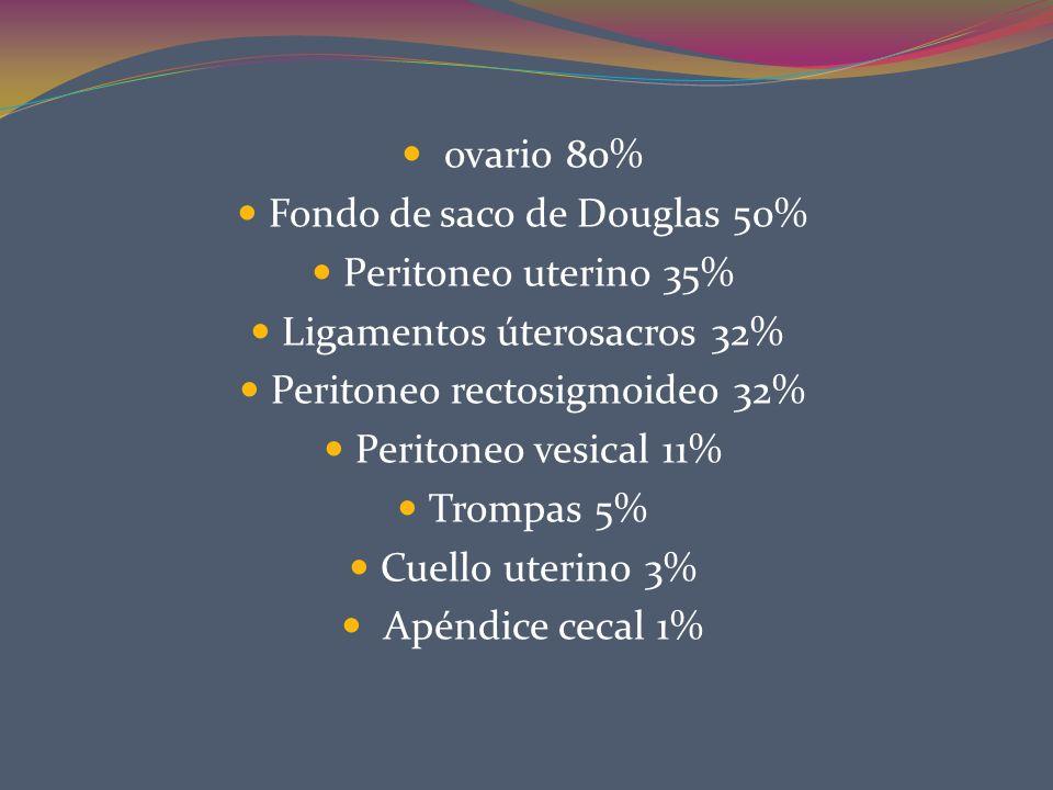 Fondo de saco de Douglas 50% Peritoneo uterino 35%