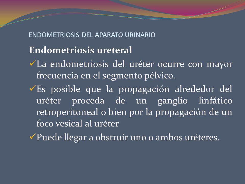 ENDOMETRIOSIS DEL APARATO URINARIO