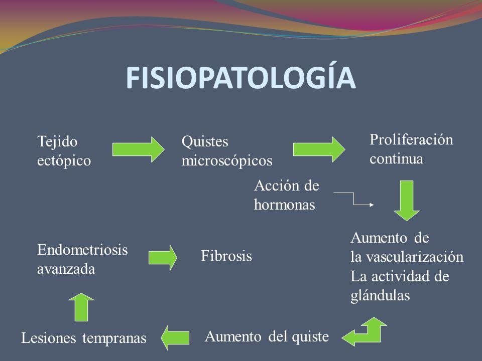 FISIOPATOLOGÍA Tejido ectópico Quistes microscópicos Proliferación