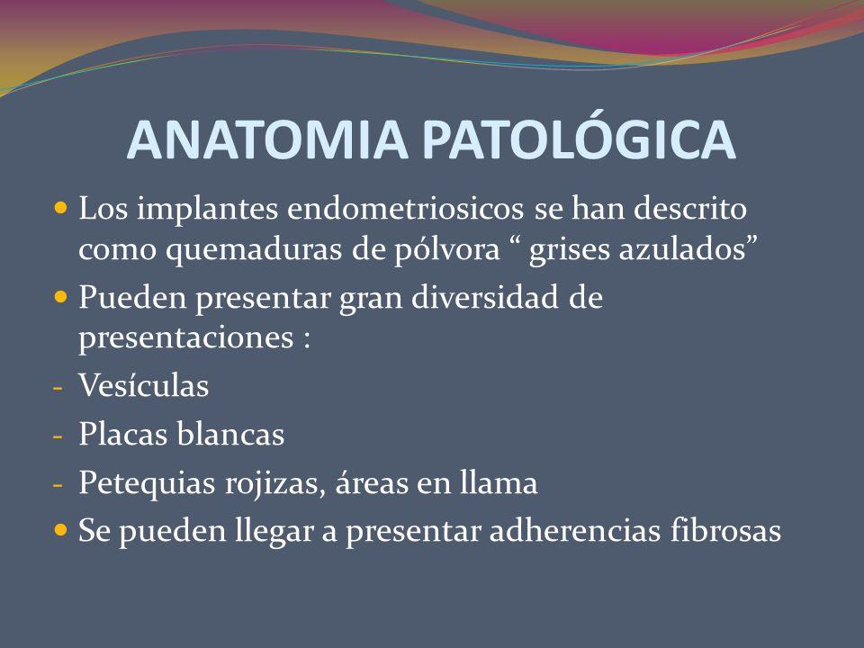ANATOMIA PATOLÓGICA Los implantes endometriosicos se han descrito como quemaduras de pólvora grises azulados