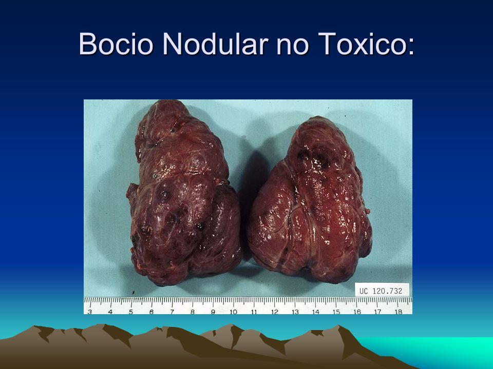 Bocio Nodular no Toxico: