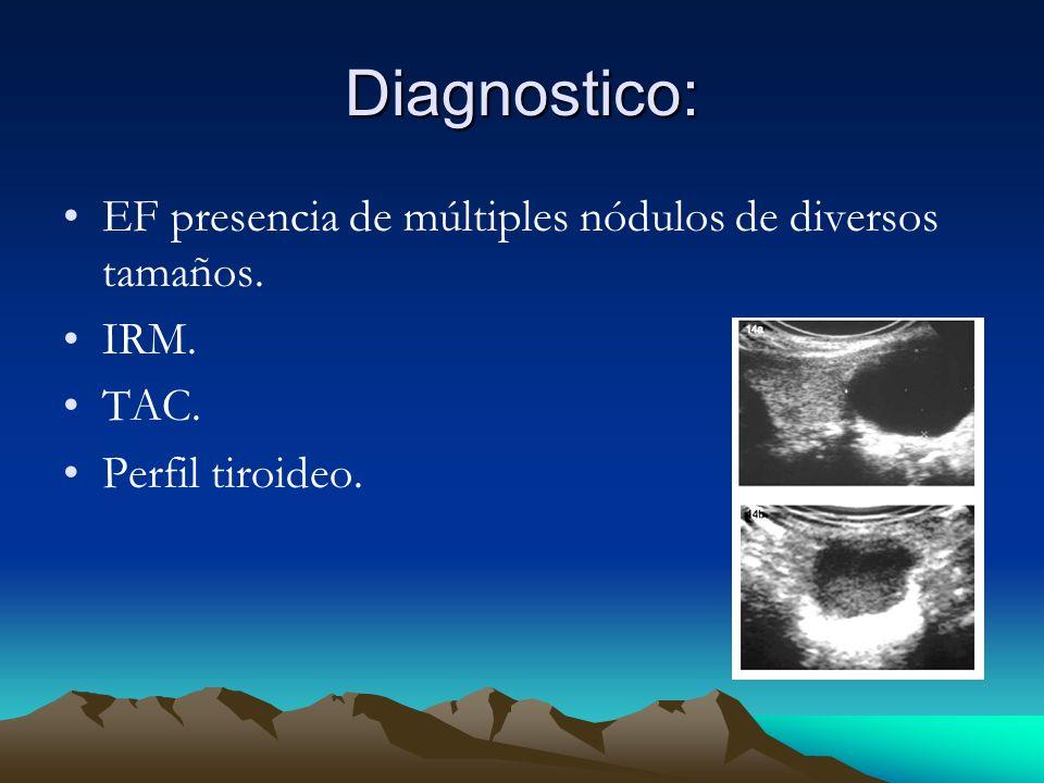 Diagnostico: EF presencia de múltiples nódulos de diversos tamaños.