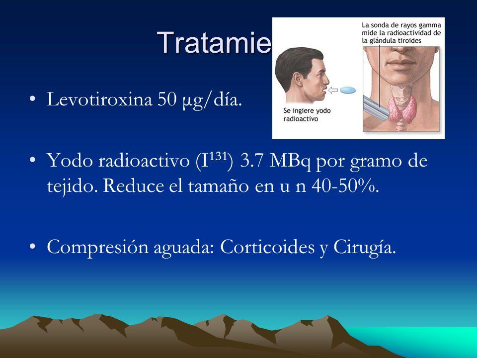 Tratamiento: Levotiroxina 50 μg/día.