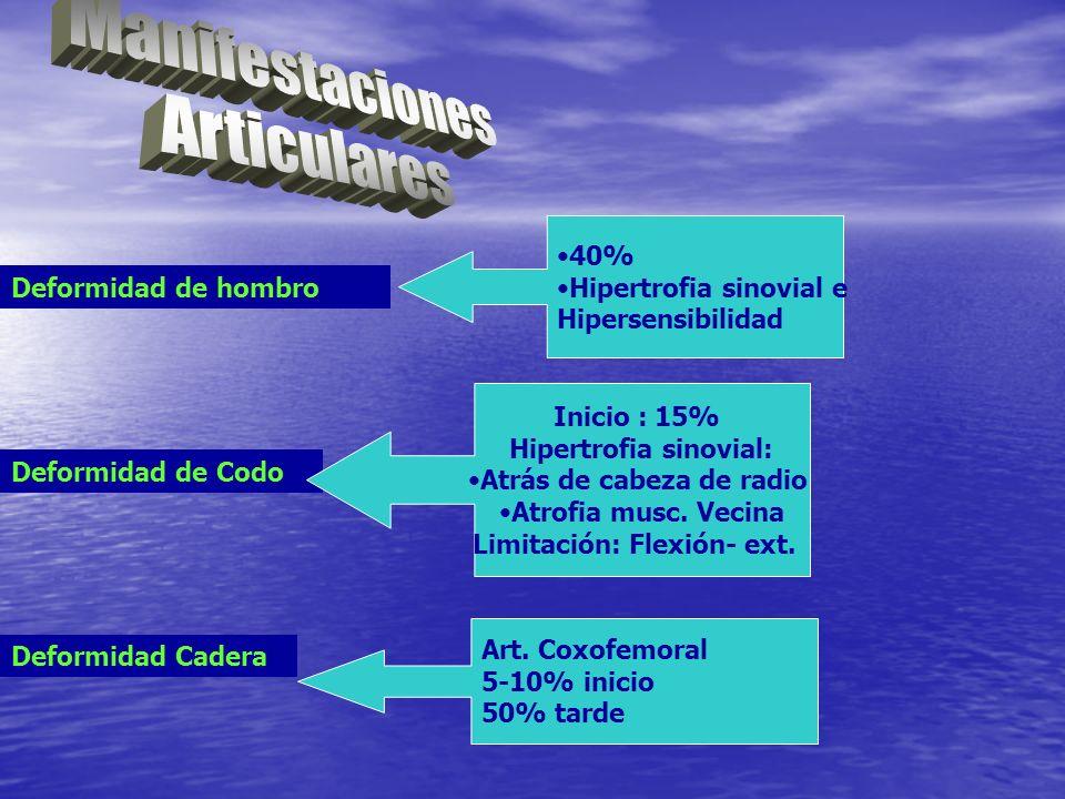 Manifestaciones Articulares 40% Hipertrofia sinovial e