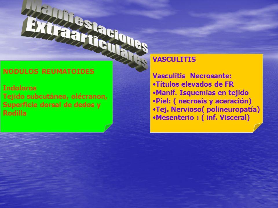 Manifestaciones Extraarticulares VASCULITIS Vasculitis Necrosante: