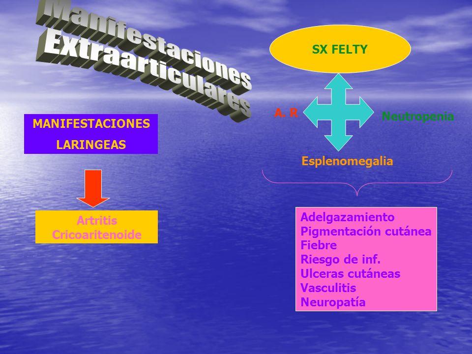 Artritis Cricoaritenoide