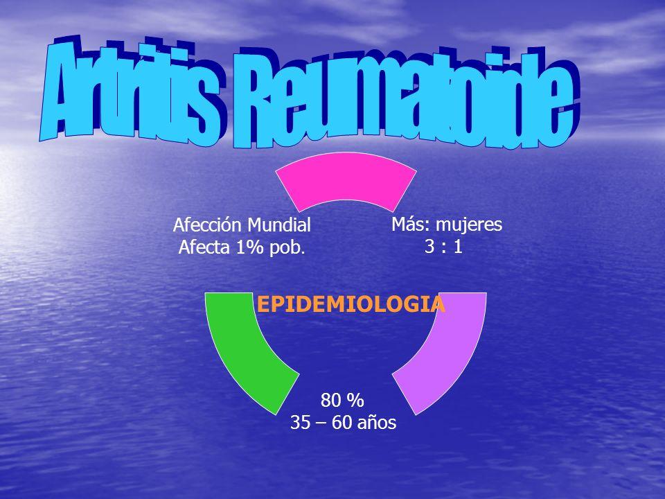 Artritis Reumatoide EPIDEMIOLOGIA