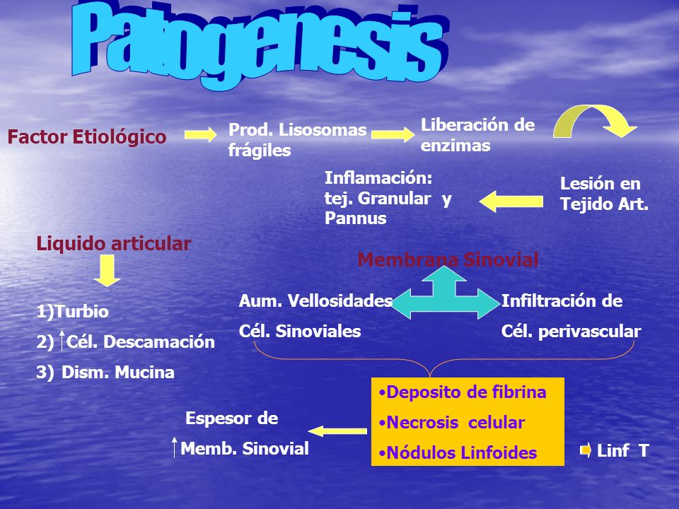 Patogenesis Factor Etiológico Liquido articular Membrana Sinovial